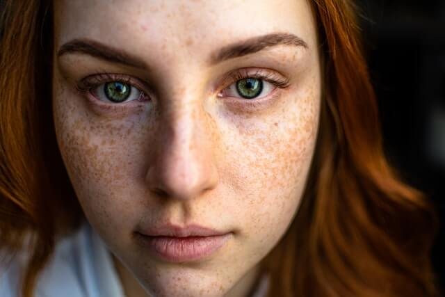 Home Remedies For Remove Black Spots On Face